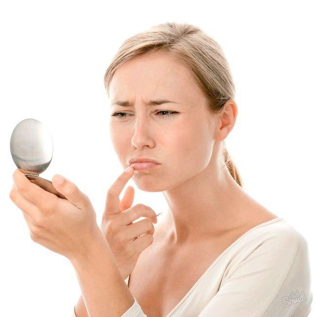 Виразки в роті: як лікувати