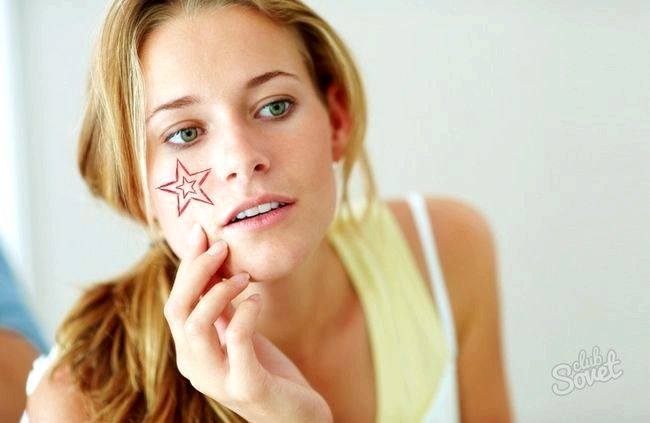 Як прибрати судини на обличчі