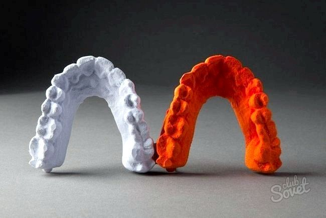 Як вирівняти зуби